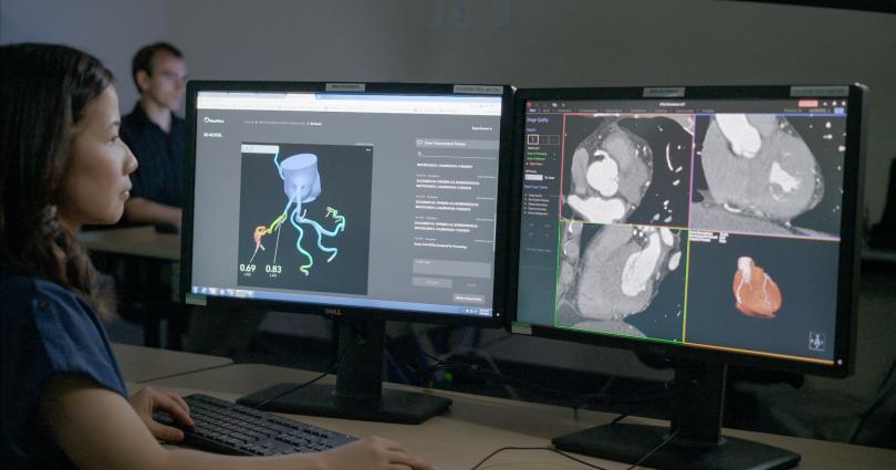 مدلهای سهبعدیِ HeartFlow از قلب