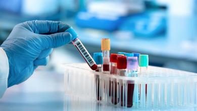 تامین مواد مصرفی تولید کیت های آموزشی در جهت تجهیز پژوهش سراهای دانش آموزی کشور